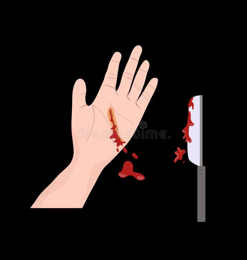 авария-ножа-руки-98186023